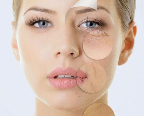 tratamiento-hidrotensor-antiarrugas-joven