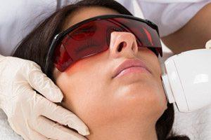 acné-arrugas-laser-fototerapia-manchas-tratamientos-faciales