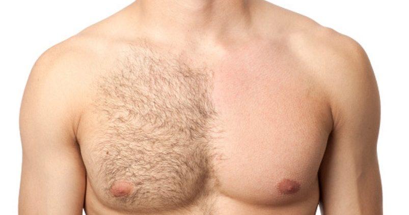 pelo pecho enquistado grano laser hombre Elche