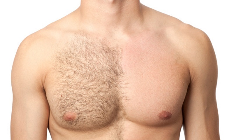 pelo pecho enquistado grano laser hombre