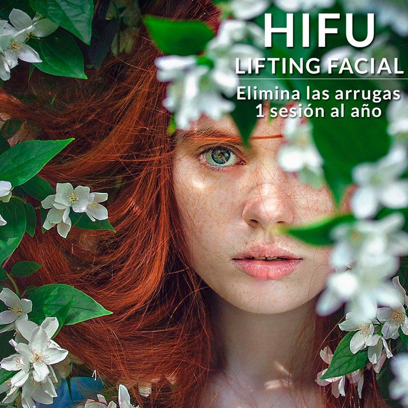HIFU LIFTING FACIAL