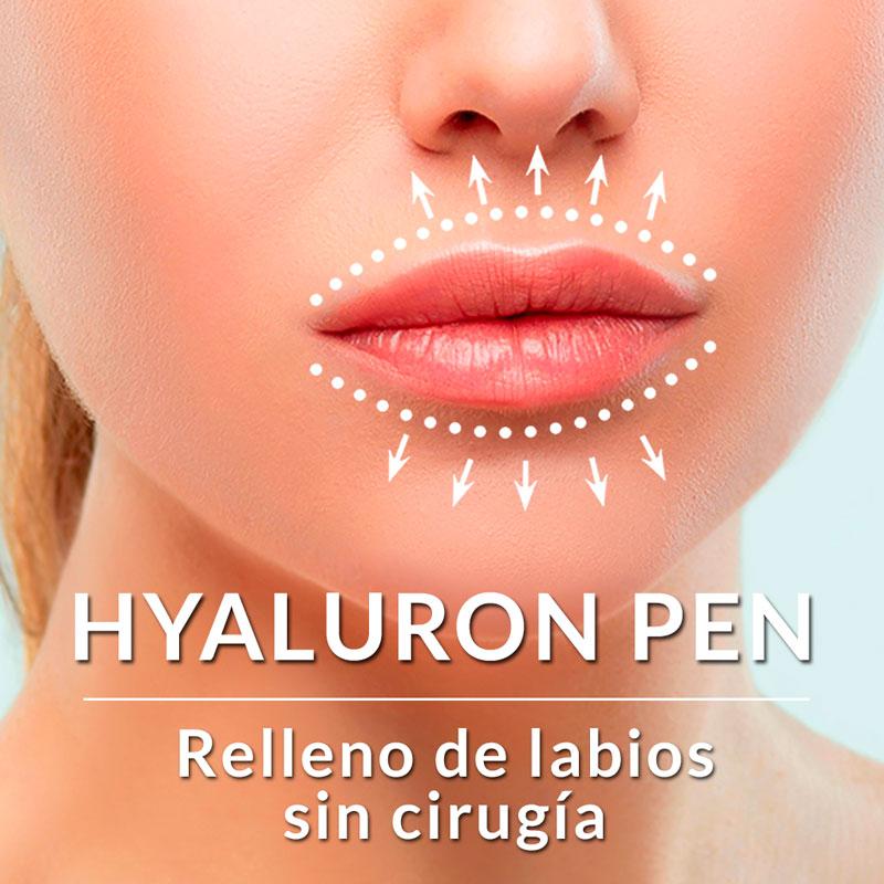 HYALURON PEN RELLENO